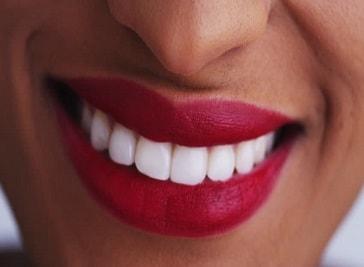 Smile Dental in British Virgin Islands